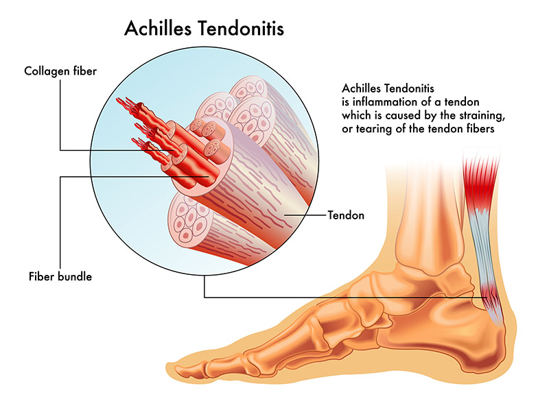 Achilles Tendonitis Diagram