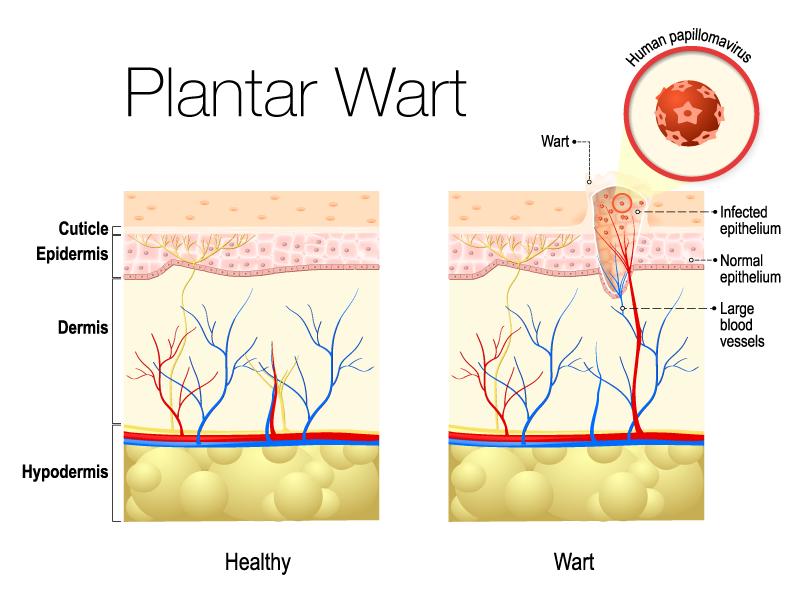 Plantar Wart Vector Illustration